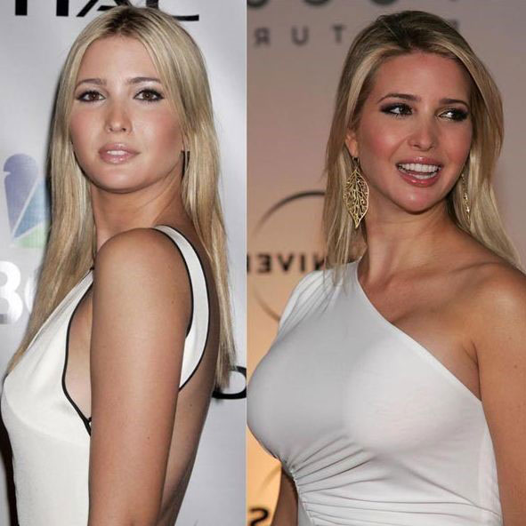 Ivanka Trump before and after breast augmentation