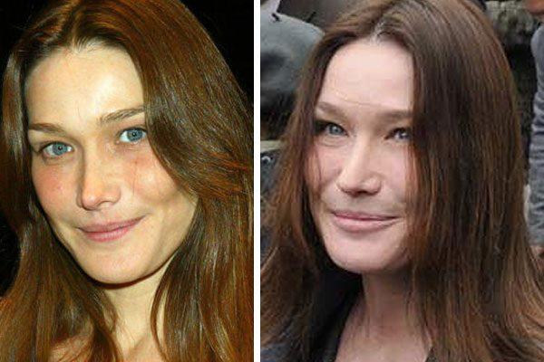 Carla Bruni Botox