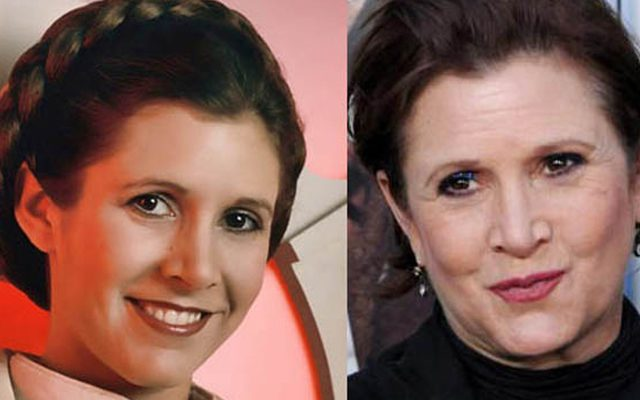 Carrie Fisher Botox