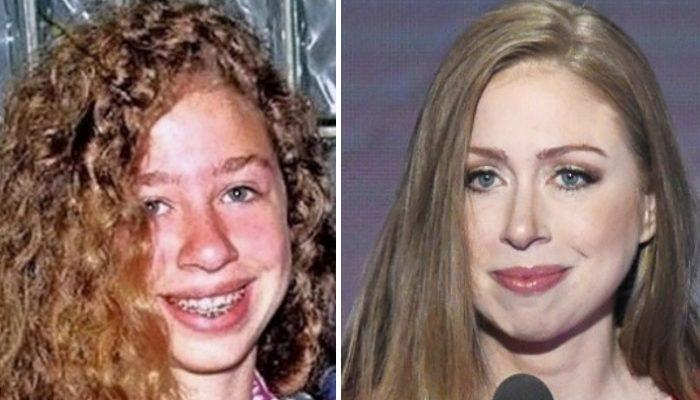 Chelsea Clinton Nose Job