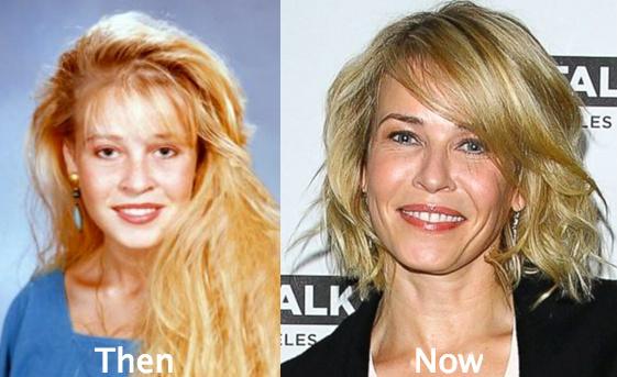 Chelsea Handler Botox