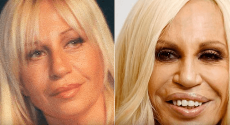 Donnatella Versace Botox