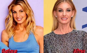 Faith Hill Botox