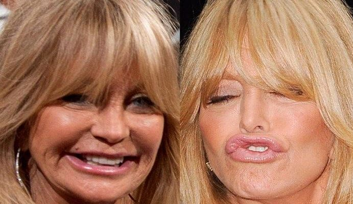 Goldie Hawn Facelift Botox