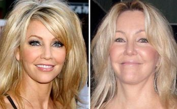 Heather Locklear Botox