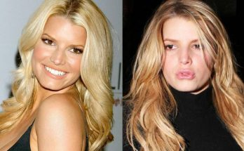 Jessica Simpson Lip Injections Before After