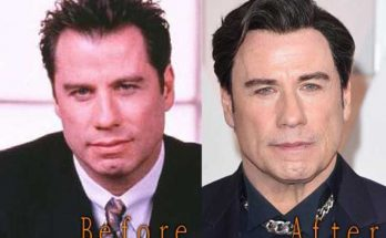 John Travolta Facelift Before After