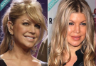 Fergie Cosmetic Surgery