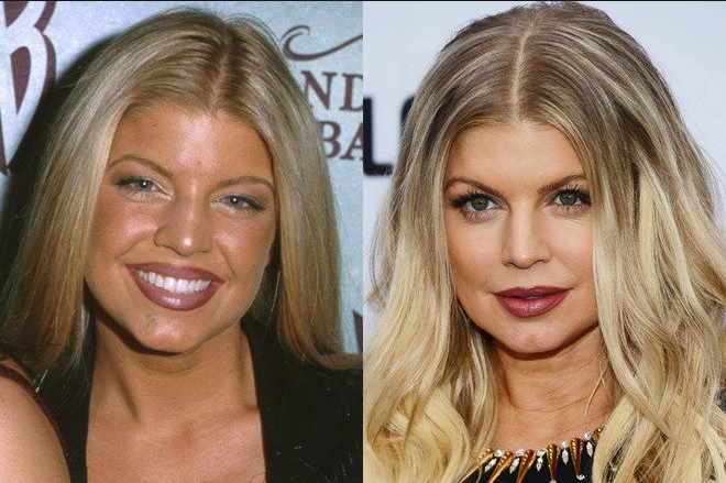 Fergie Nose Job
