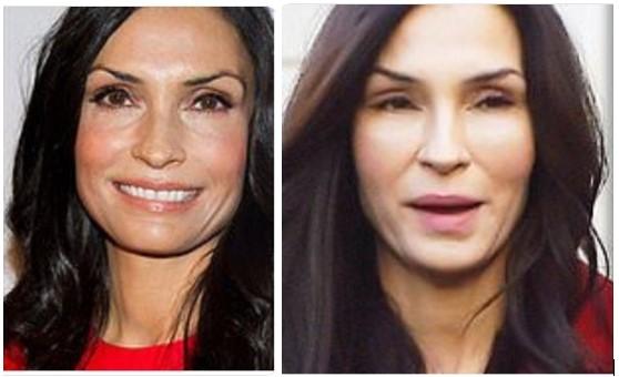 Famke Janssen Botox