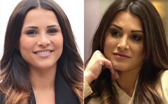 Andi Dorfman Nose Job
