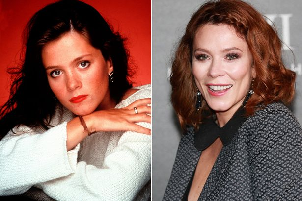 Anna Friel Botox Injections