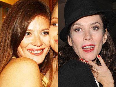 Anna Friel Plastic Surgery