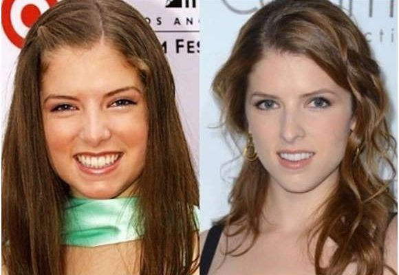 Anna Kendrick Nose Job