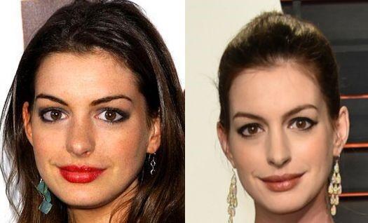 Anne Hathaway Nose Job