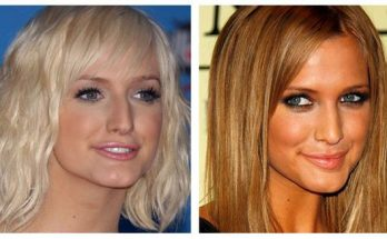 Ashlee Simpson Lip Injections