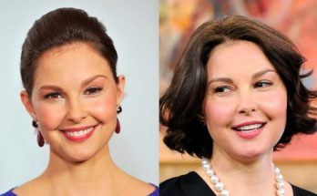 Ashley Judd Botox