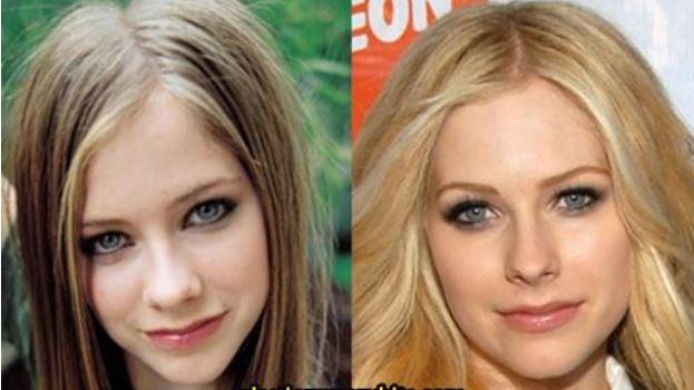 Avril Lavigne Nose Job