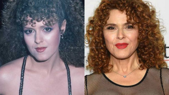 Bernadette Peters Btox