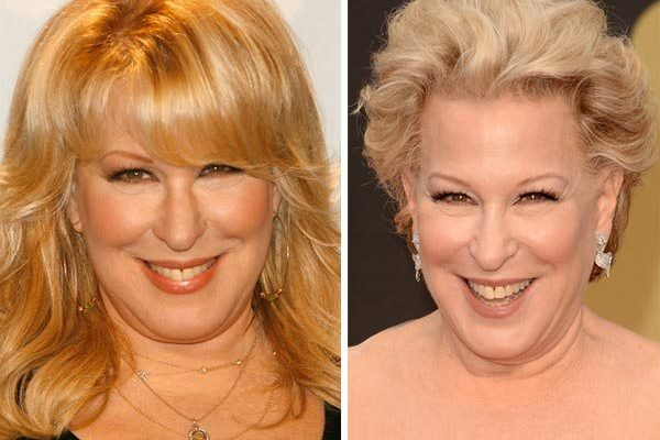 Bette Midler Facelift and Botox