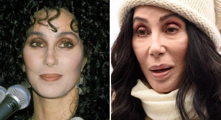 Cher Botox