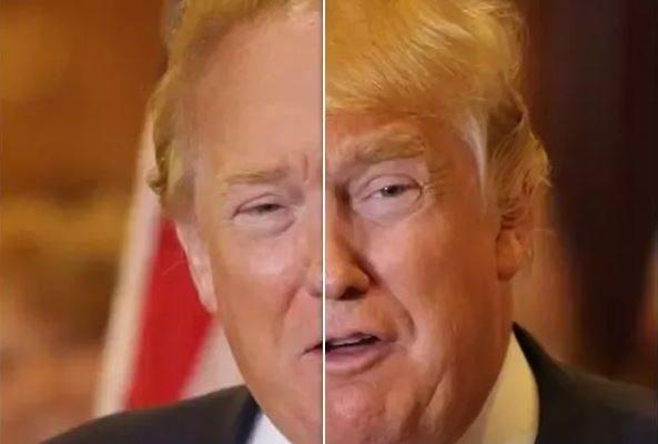 Donald Trump Botox