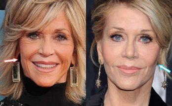 Jane Fonda Botox