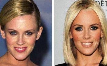 Jenny McCarthy Botox Before After