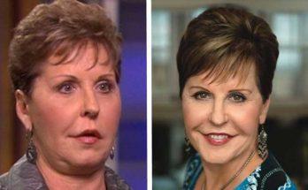 Joyce Meyer Facelift Before After