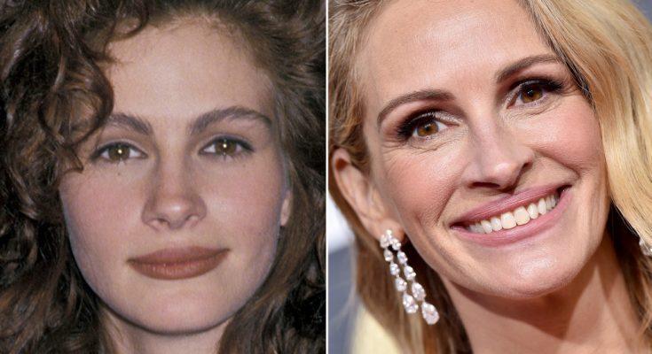 Julia Roberts Plastic Surgery Rumors