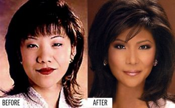Julie Chen Eyelid Surgery