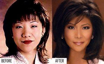 Julie Chen Eyelid Surgery
