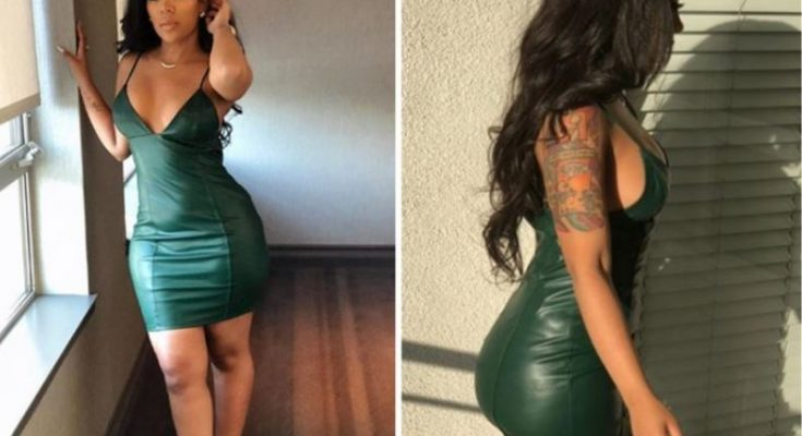 K Michelle Butt Injections