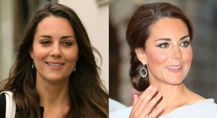 Kate Middleton Nose Job