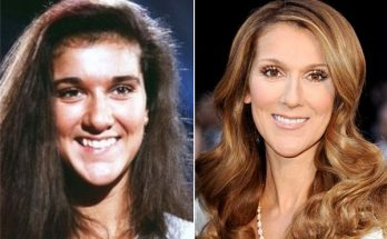 Celine Dion Nose Job
