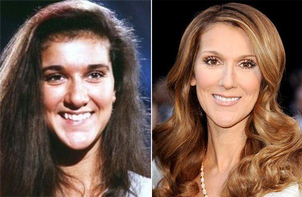 Celine Dion Nose Job