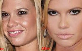 Chanel West Coast Nose Job