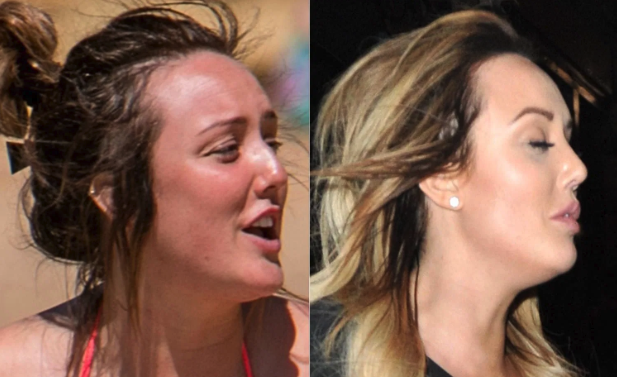 Charlotte Crosby Nose Job