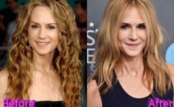 Holly Hunter Facelift