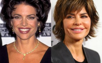Lisa Rinna Lip Injections