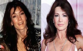 Lisa Vanderpump Plastic Surgery Rumors
