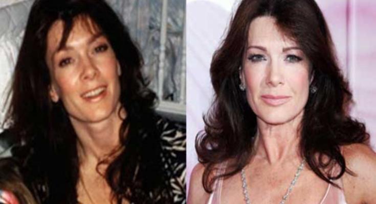 Lisa Vanderpump Plastic Surgery Rumors