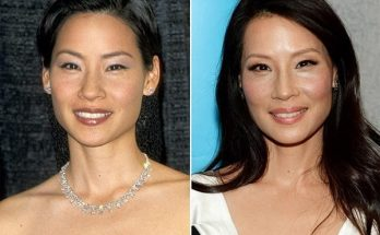 Lucy Liu Nose Job