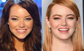 Emma Stone Nose Job