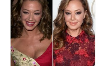 Leah Remini Lips Facelift Rumors