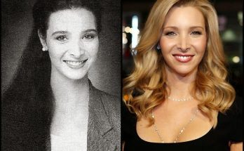 Lisa Kudrow Nose Job Plastic Surgery