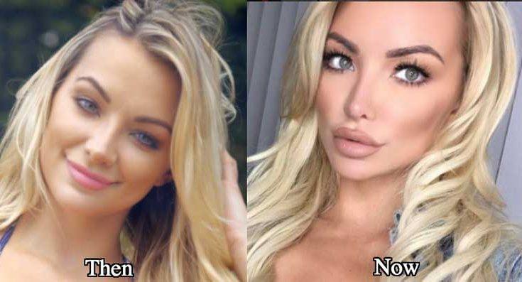 Lindsey Pelas Plastic Surgery Nose Job Boob Job