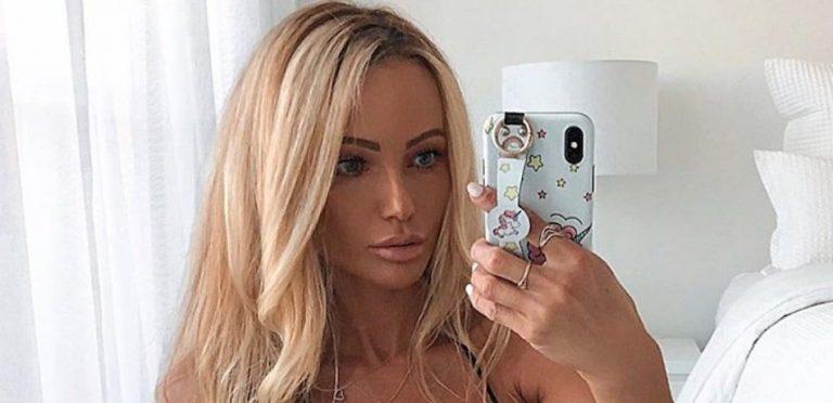 Abby Dowse Botox Plastic Surgery