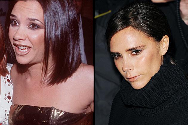 Allison Miller Nose Job Plastic Surgery