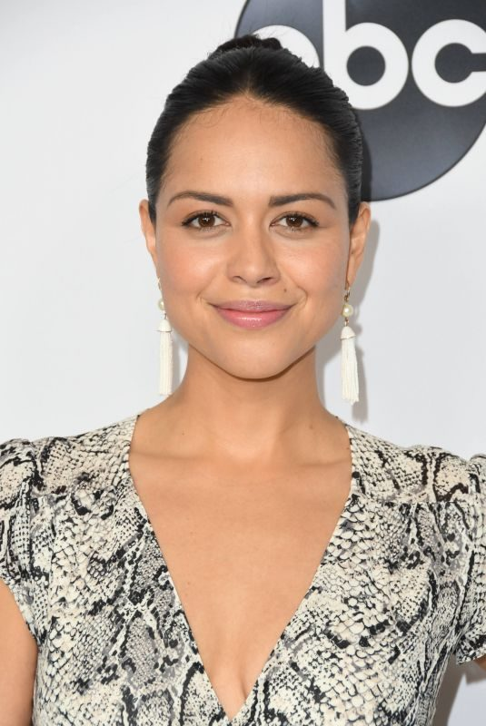 Alyssa Diaz Lips Plastic Surgery